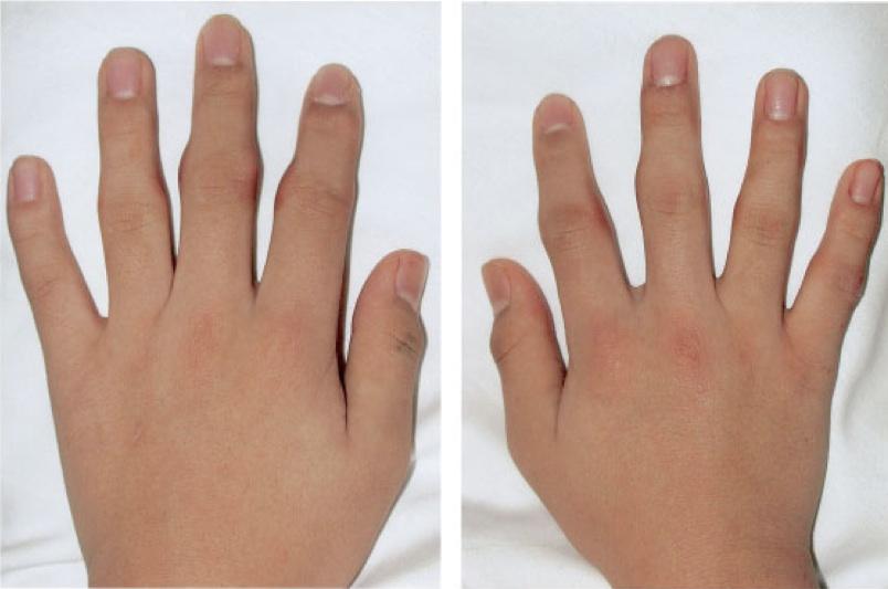Le traitement des ongles pour les mains et les pieds